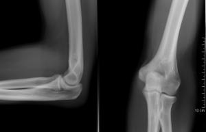 deformáló artrosis a bal boka ízületében