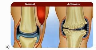 az artrózis kezelést okoz a báránynak van közös problémája