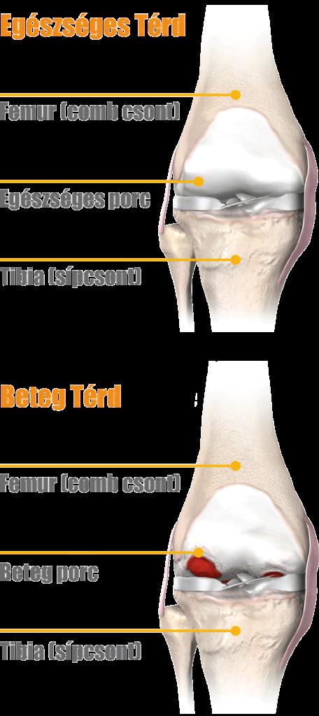 artrózis a térd kezelési módszerei