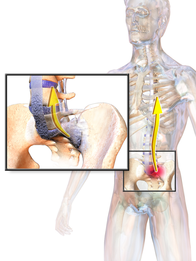 ortofen kenőcs az oszteokondrozisértékelésekről