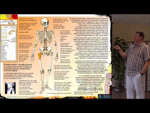 a talis navicularis ízület artrózisa 3 fokozat ízületek és izmok fájdalomcsillapító kenőcsei ár