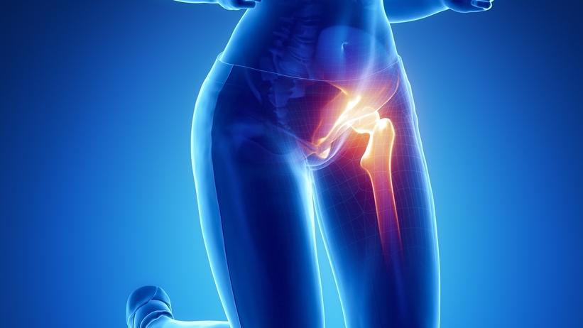 gyulladt csípőízület kezelése csípőízületek fájdalmainak kezelésére
