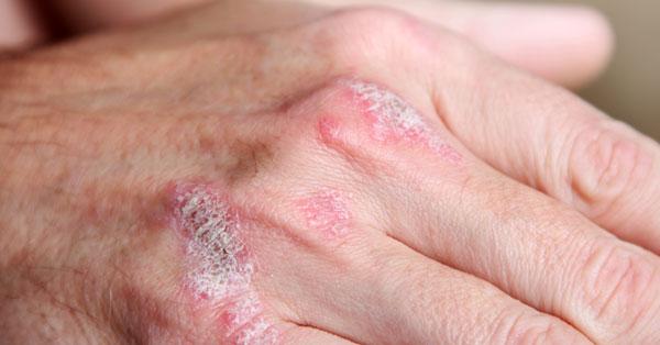 az ujjak psoriasis ízületi gyulladásának tünetei ízületek vagy vénák fájnak
