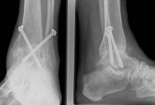 A bokaízület arthrosisának kezelése 1 fok - Bőrgyulladás July