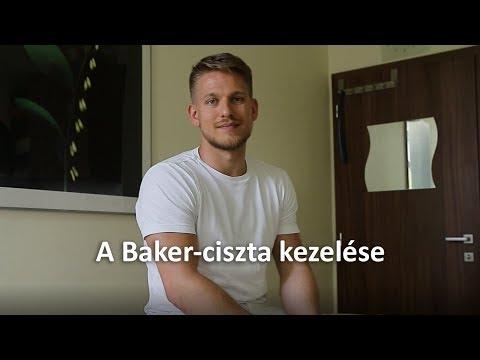 Baker-ciszta (izületi folyadékkal telt tömlő a térdhajlatban)   Dr. Gergely Zsolt