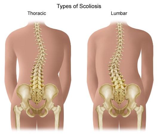 a térd deformáló artrózisa 3 szakasz időszakos akut fájdalom a térdben
