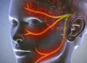 Patellofemorális szindróma kezelése | SmileyMed