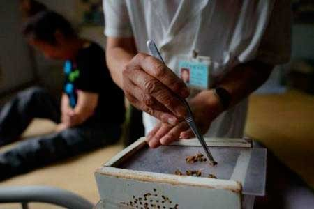 méhízületi kezelés