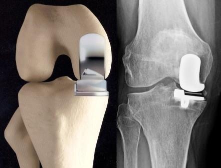 a térd artrózisának radiológiai mértéke