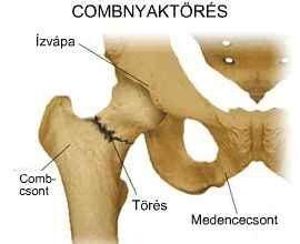 csípőtörés betegség következményei térdfájdalom sétáló ropogás