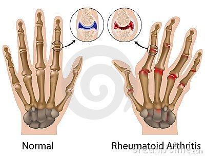 ízületi problémák az ujjakon