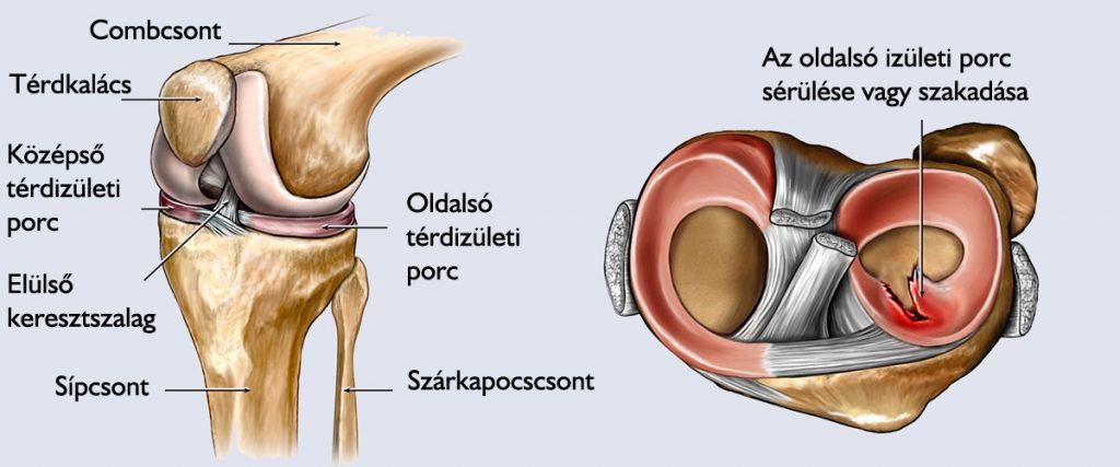 térdízület fáj a tüneteket