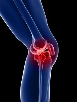 a csípőízületek fájdalma éjjel rosszabb