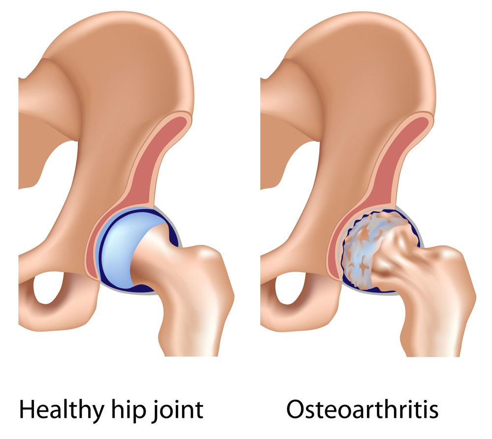 ízületi fájdalom a test jobb oldalán ízületi fájdalomkezelés hő