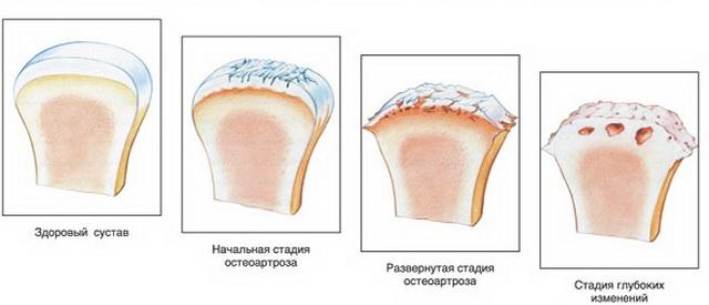 módszerek a vállízület fájdalmának kezelésére