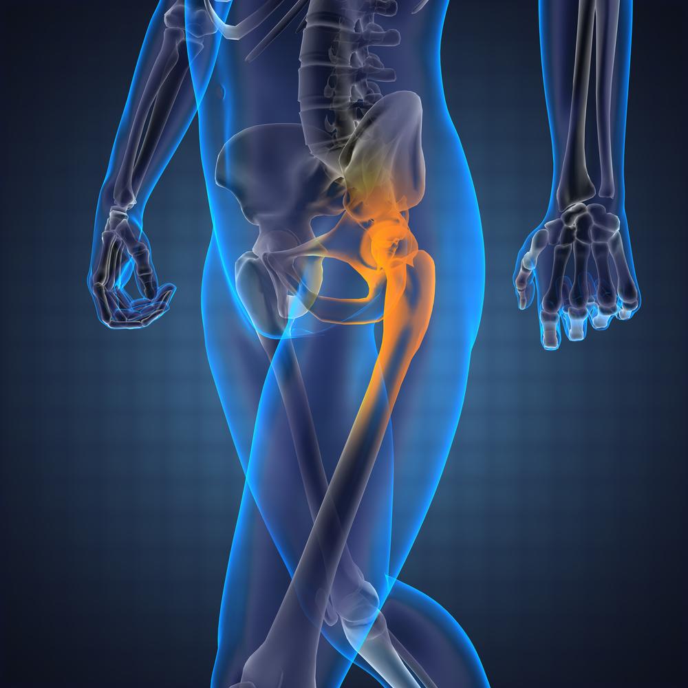 gyulladt csípőízület kezelése lapos lábak ízületei fájnak