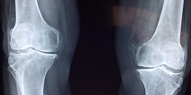 fájdalom és fájdalom a vállízületben boka ízületi kezelési gyakorlatok