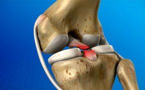 ízületi és csontok stressz fájdalmaival 27 éves ízületi fájdalom