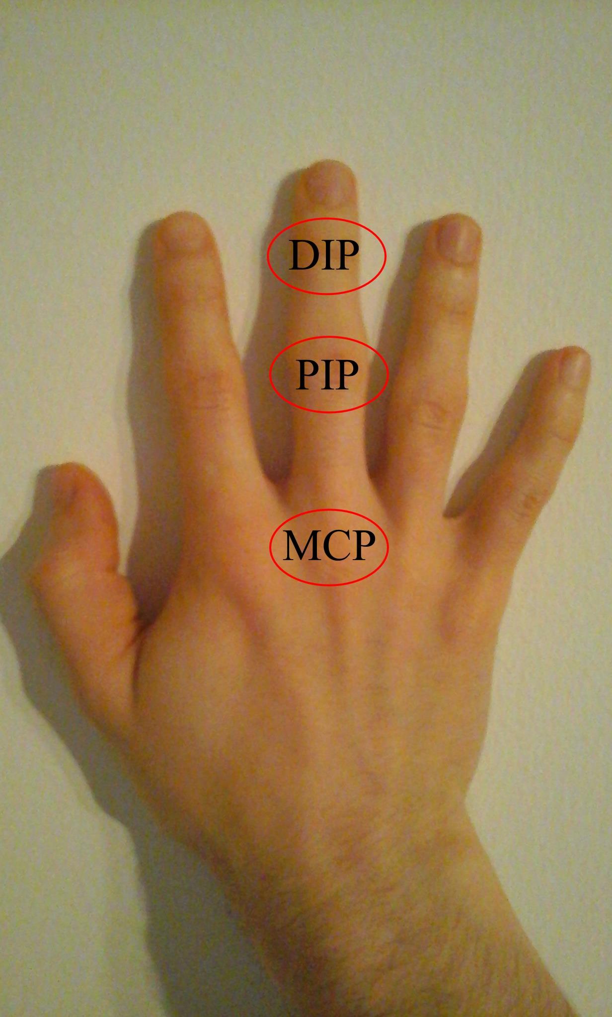 ízületi gyulladás az egyik ujján