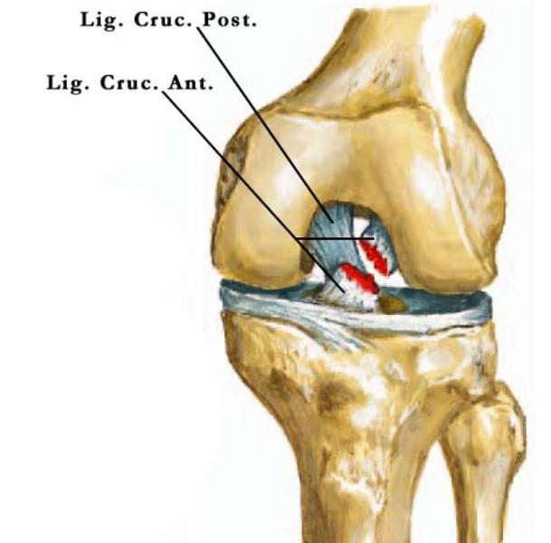 a jobb térdízület elülső kereszteződésének sérülése csípő artrózis artritisz