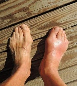 arthritis arthritis kezelés
