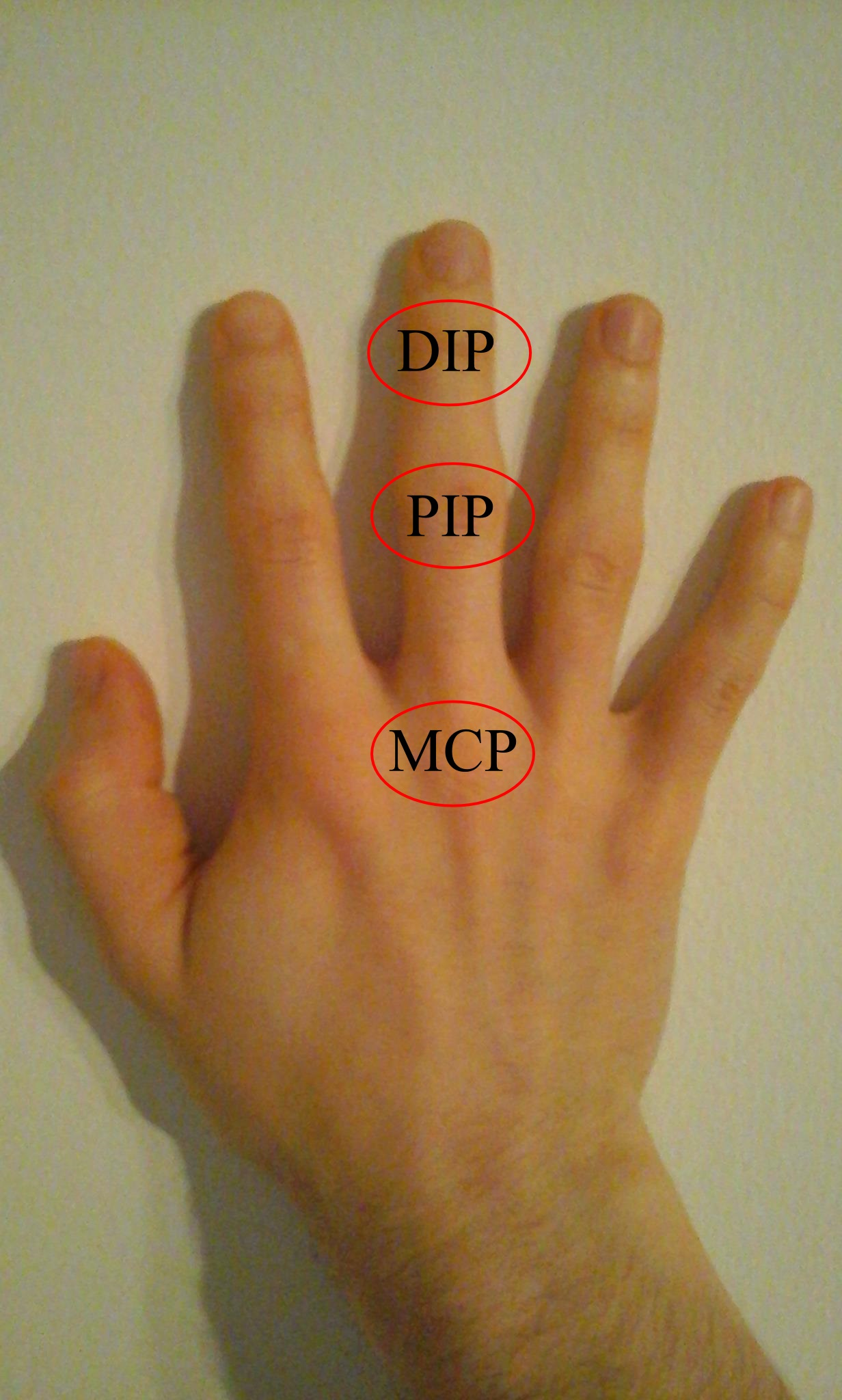 az ujjak psoriasis ízületi gyulladásának tünetei ízületi és gerincbetegségek tünetei