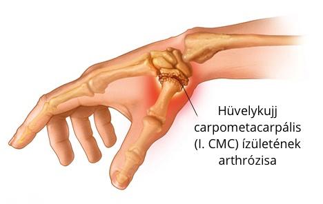 fájdalom a boka és a hüvelykujj