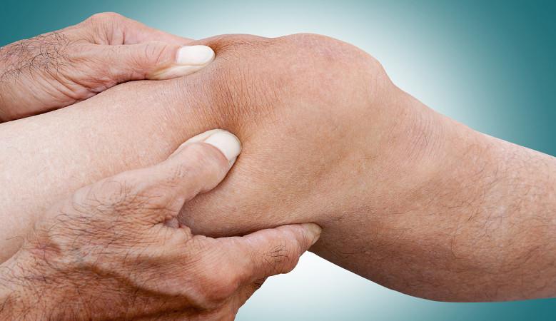 ízületi és lábfájdalom artrózis