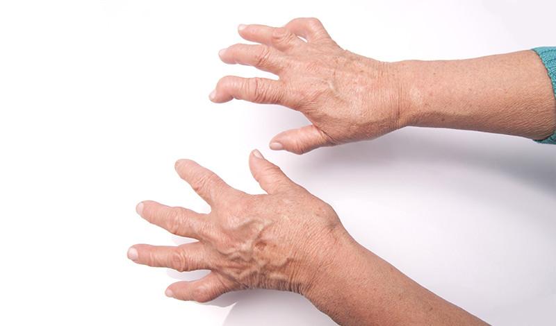 segít-e az ibuprofen ízületi fájdalmak esetén