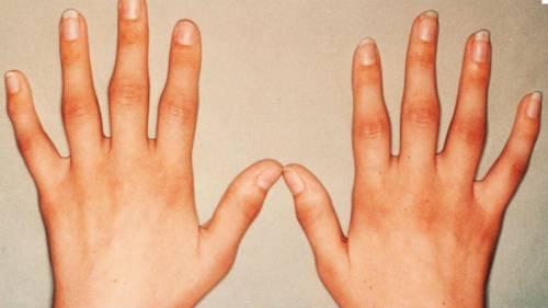 carmolis ízületi fájdalmak esetén az ízületi fájdalmak befolyásolják-e