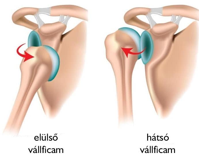 műtét utáni vállízület fájdalom a csípőízületekben és az alsó háton