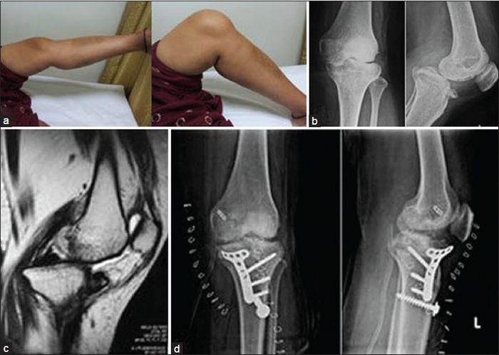 csontritkulás, csípőízület artrózisával innováció az osteoarthritis kezelésében