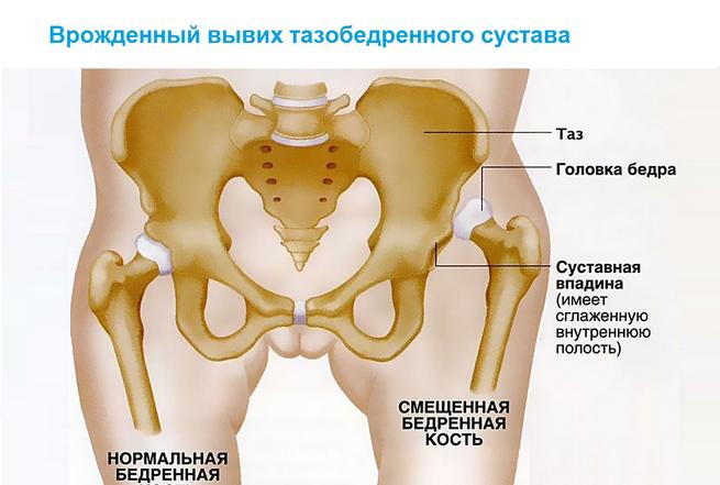 boka artrózisának kezelésére szolgáló készülékek masszírozó az ízületek fájdalmáért