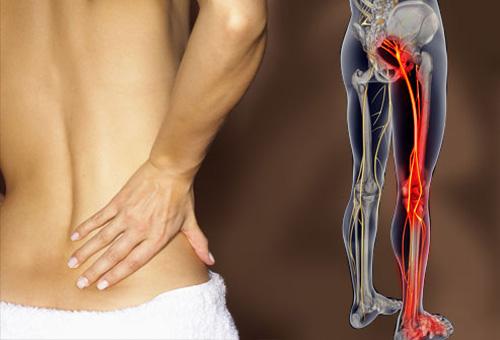 fájdalom a csípőben és a fenékben