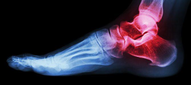"""Hogyan lehet kezelni a bokaízület fájdalmát és duzzanatát - A duzzadt láb """"egyszerűbb"""" okai"""