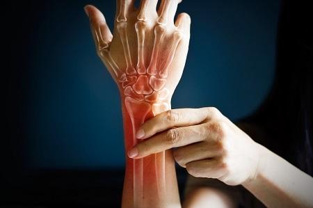 fájdalom az ízületi zsibbadás karjában ízületi ízületi kezelés bojtorján