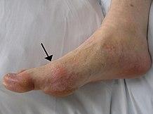 lábujj ízületi gyulladása