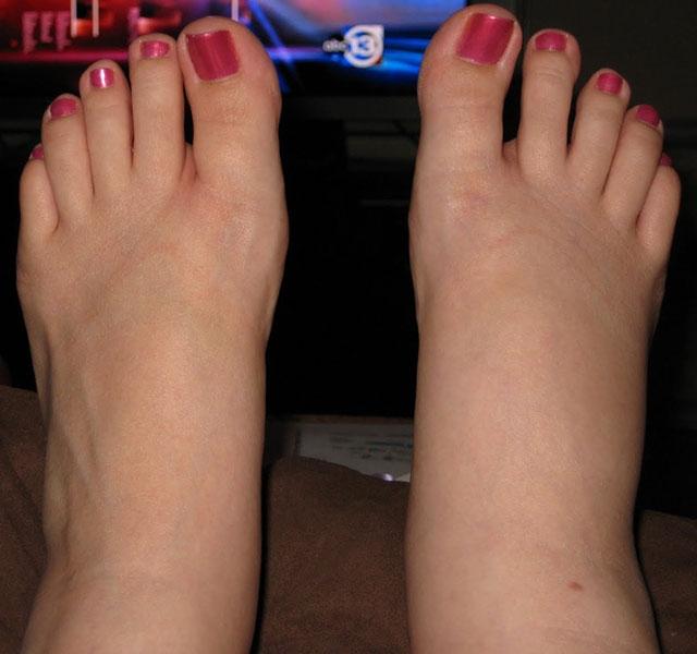 csípőízületi protézis fájdalom műtét után arthrosis deformans csípőízület