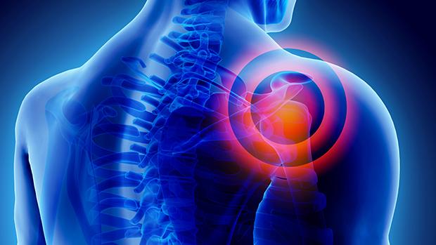 hogyan kezeljük a csípőízület íngyulladását méhméreg kenőcs és ízületi fájdalmak