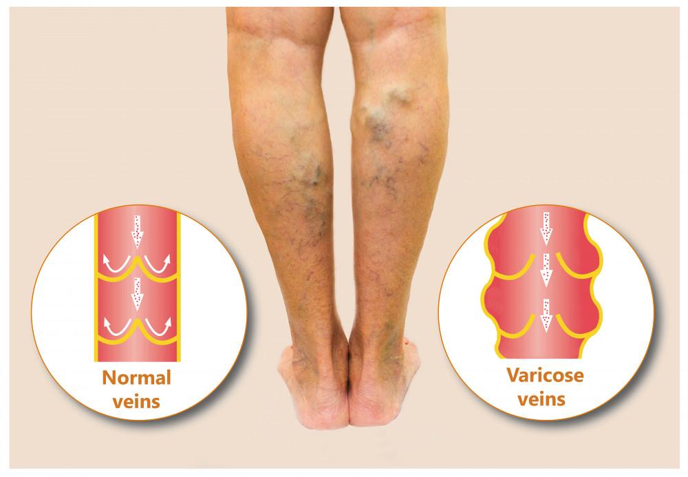 ízületek ízületi gyulladása. diagnózis és kezelés acromioclavicularis izületi arthrosis