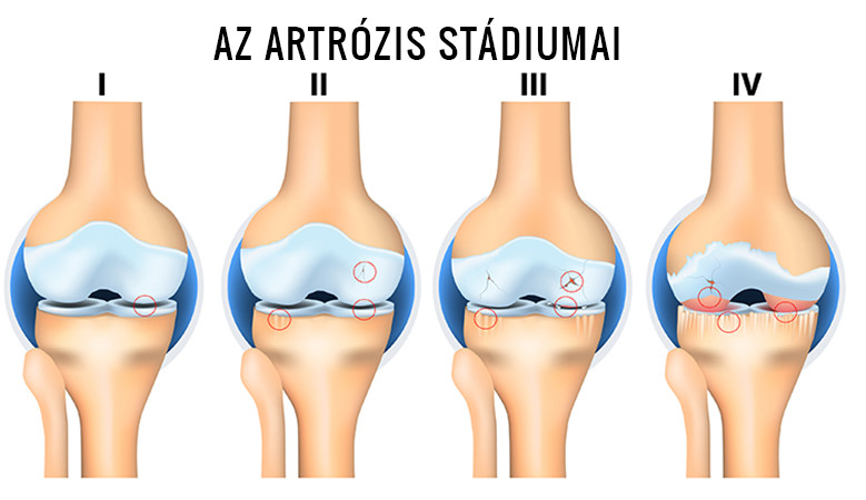artrózis a térd kezelésében kezeljük a vállízület fájdalmát