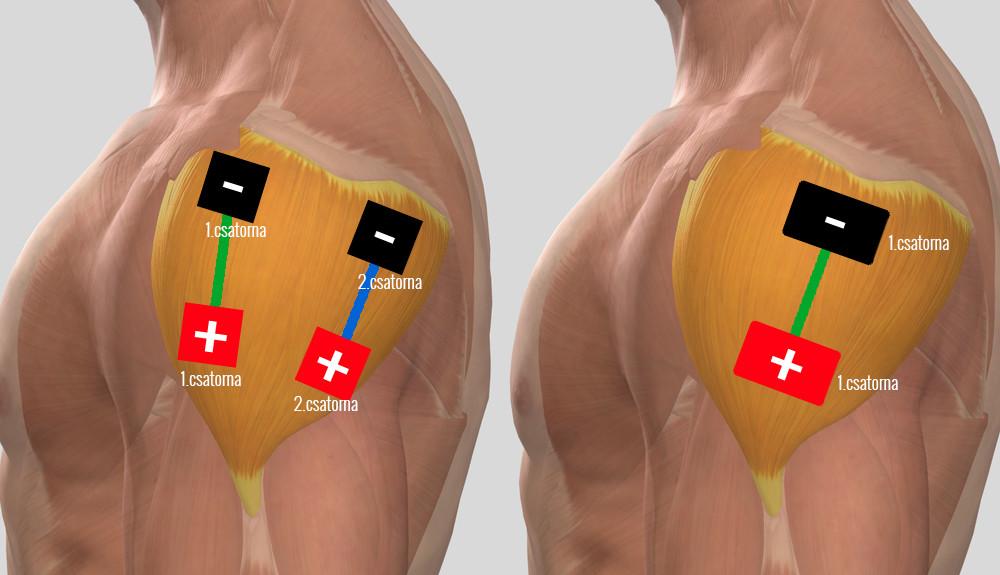 miért fáj az ízületek az eső előtt térdízület gonarthrosis gyógyszeres kezelése