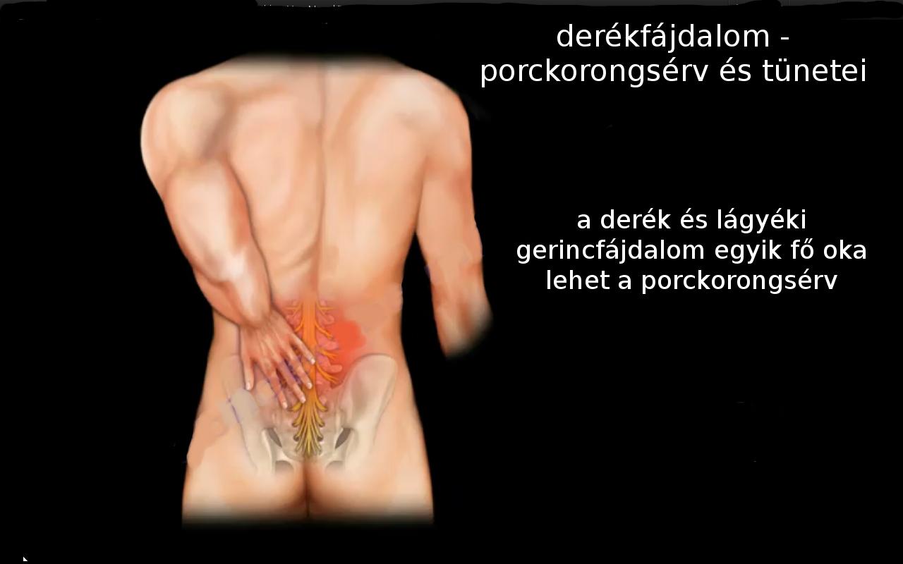 a derékfájás kezelése csípőízületi ízületi kezelés