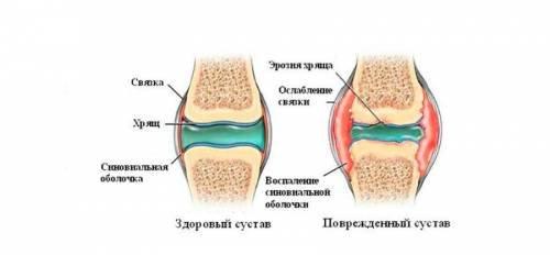 a térdízület artrózisával guggolhatunk