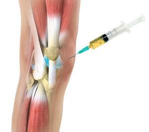 lábduzzanat artrózisos kezeléssel