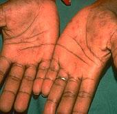 szifilisz ízületi fájdalom
