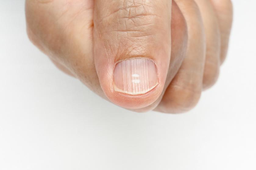 a körömízület betegségei