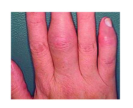 a kezek ízületeinek ízületi gyulladása