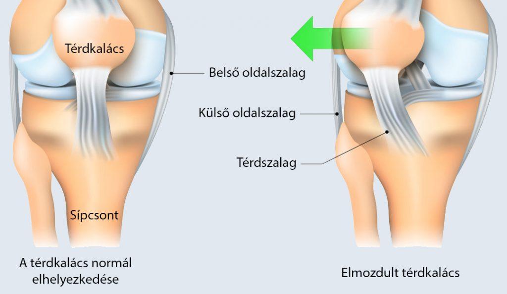 neve térd betegség artrózis és spondylosis kezelése
