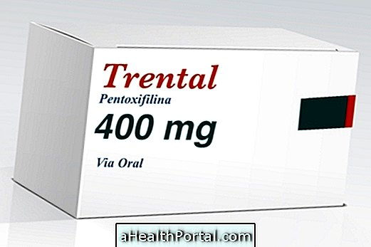 pentoxifillin a térd artrózisához
